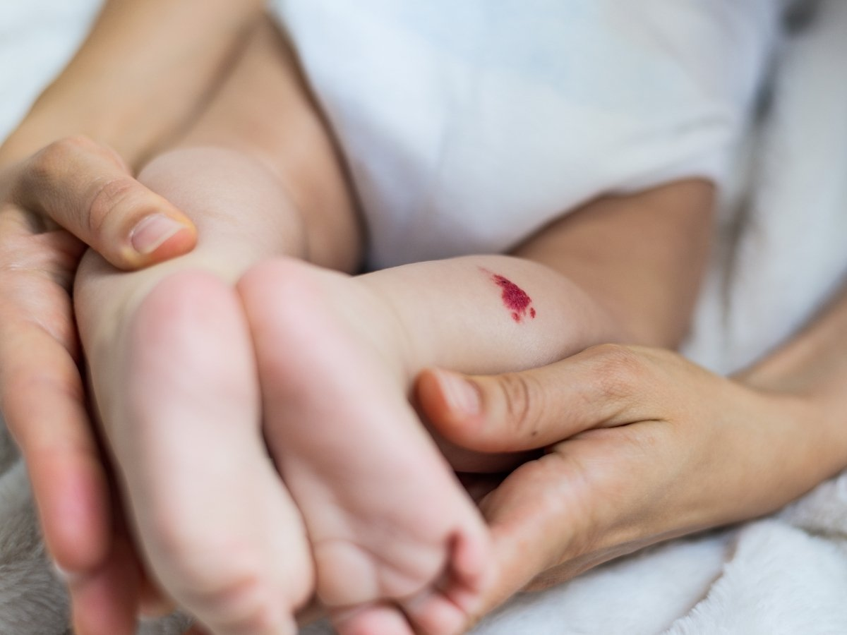 Red Birthmark on Newborn Babies Causes and Treatments