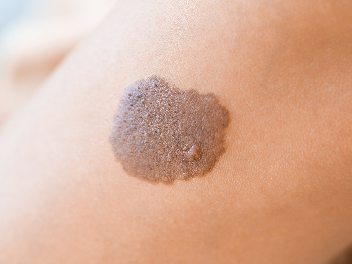 How to Choose the Best Birthmark Removal Treatments for Babies