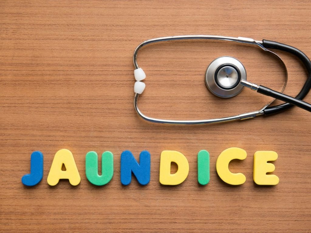 Neonatal Jaundice Variations Causes and Treatment Methods