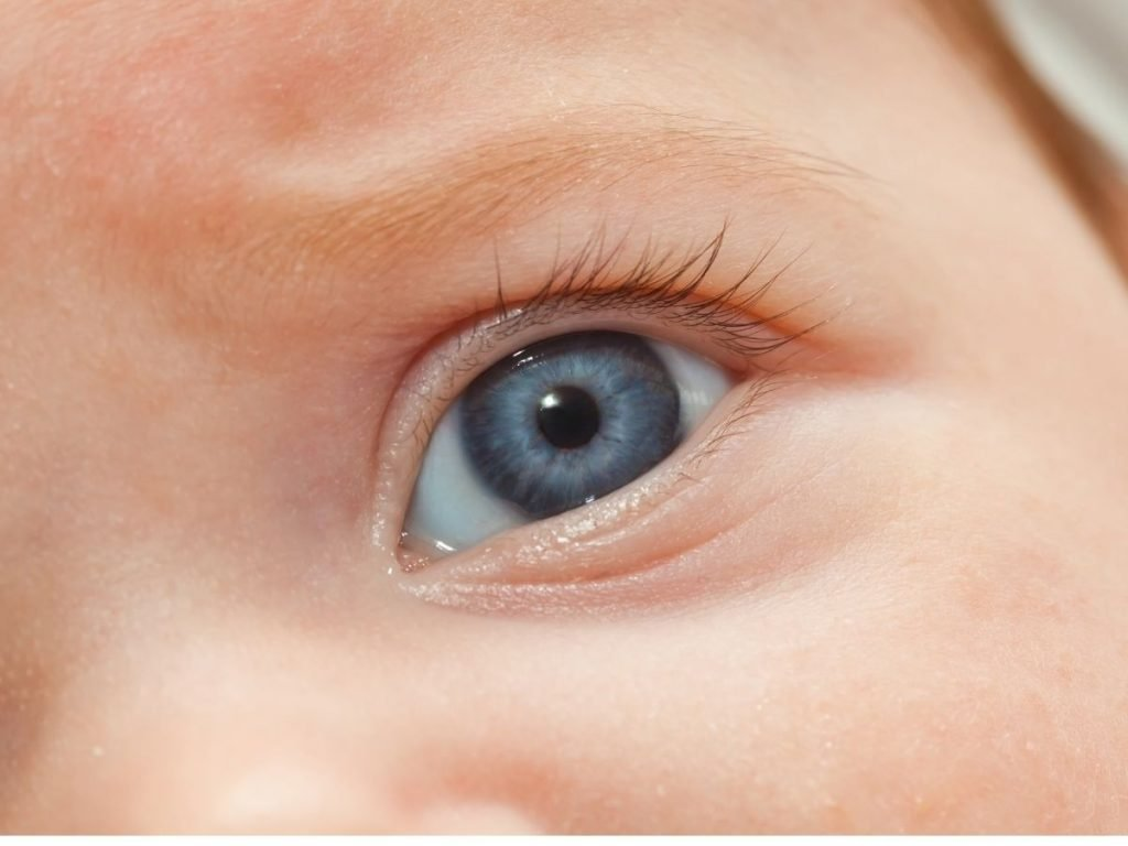 How Retinopathy of Prematurity Can Cause Blindness in Newborn Babie
