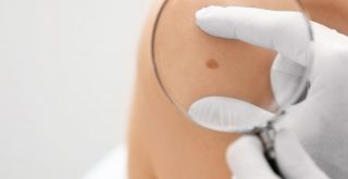 Should You Take Birthmark Removal Treatments